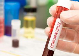 [Coronavirus] Último Informe Epidemiológico da cuenta de 21.780 muertos y más de 678 mil contagiados en el país